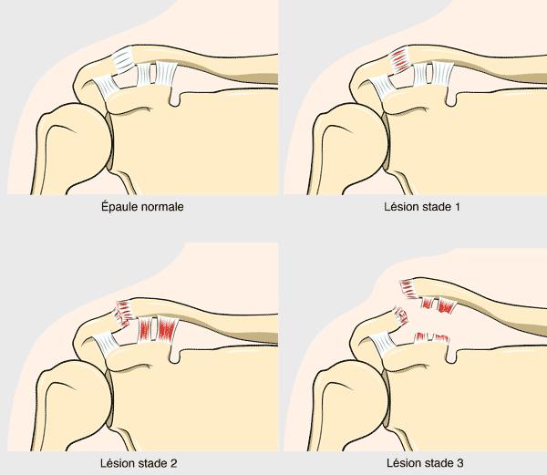 Disjonction Acromio Claviculaire