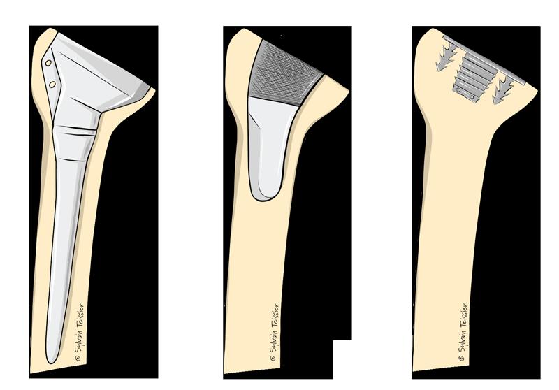 Tiges prothèses épaule
